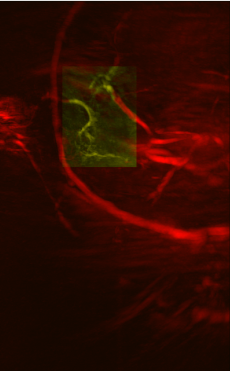 Reconstructed image from a patient, using LOUISA Gen 1 PACT breast system at MD Anderson. The yellow section shows possible angiogenesis, which indicate potential tumors.